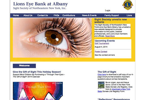 image of lions eye bank at albany website